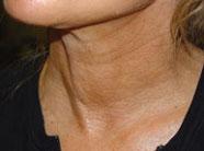 strama upp huden på halsen