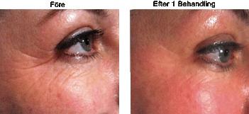 fraxel laser före och efter